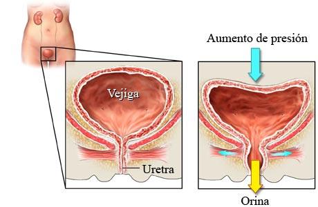 Uretra y escape orina. Fuente: redpacientes.com