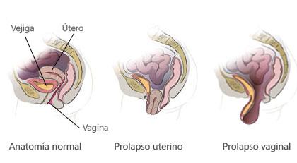Prolapso uterino. Fuente: www.davincisurgery.com